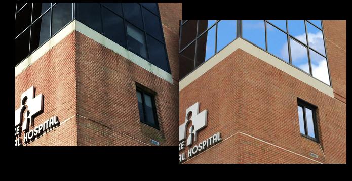 hospital_b4_after